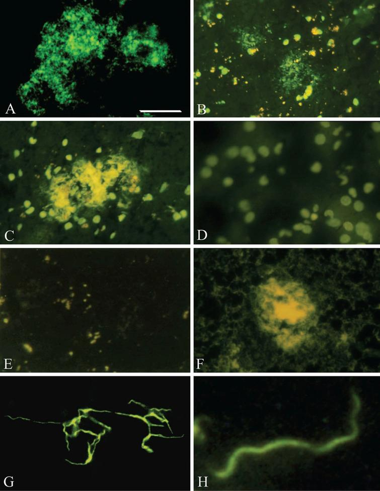 Pure in vitro B. burgdorferi biofilm and senile plaques both contain DNA, an important constituent of biofilms. A) Smear of in vitro B. burgdorferi biofilm of ADB2 strain stained with DAPI and exhibiting green fluorescence, when examined with Bp 485/20 excitation and LP 397 barrier filters. Similar DAPI fluorescence of senile plaques is seen in frontal sections of a familial (B) and an AD case where B. burgdorferi spirochetes were cultivated from the brain (C). D) On DAPI-stained frontal section of a control case only brain cell nuclei are visible. E) Following DNase treatment of a frontal cortical section of an AD case, the DAPI fluorescence of resident cell nuclei and senile plaques both disappeared. F) DNase treated AD cortical section stained with Thioflavin S. Senile plaque exhibits a yellow-green fluorescence indicating that DNase pretreatment does not abolish amyloid staining of the plaques. G, H) DAPI fluorescence of B. burgdorferi spirochetes, revealing their typical helical structure. Photomicrographs E and F were reproduced from [32] with kind permission of the editor of Journal of Spirochetal and Tick-borne Diseases. Scale bar=A: 60 μm, B: 200 μm, C: 120 μm, D: 100 μm, E: 120 μm, F: 10 μm; H: 2 μm.