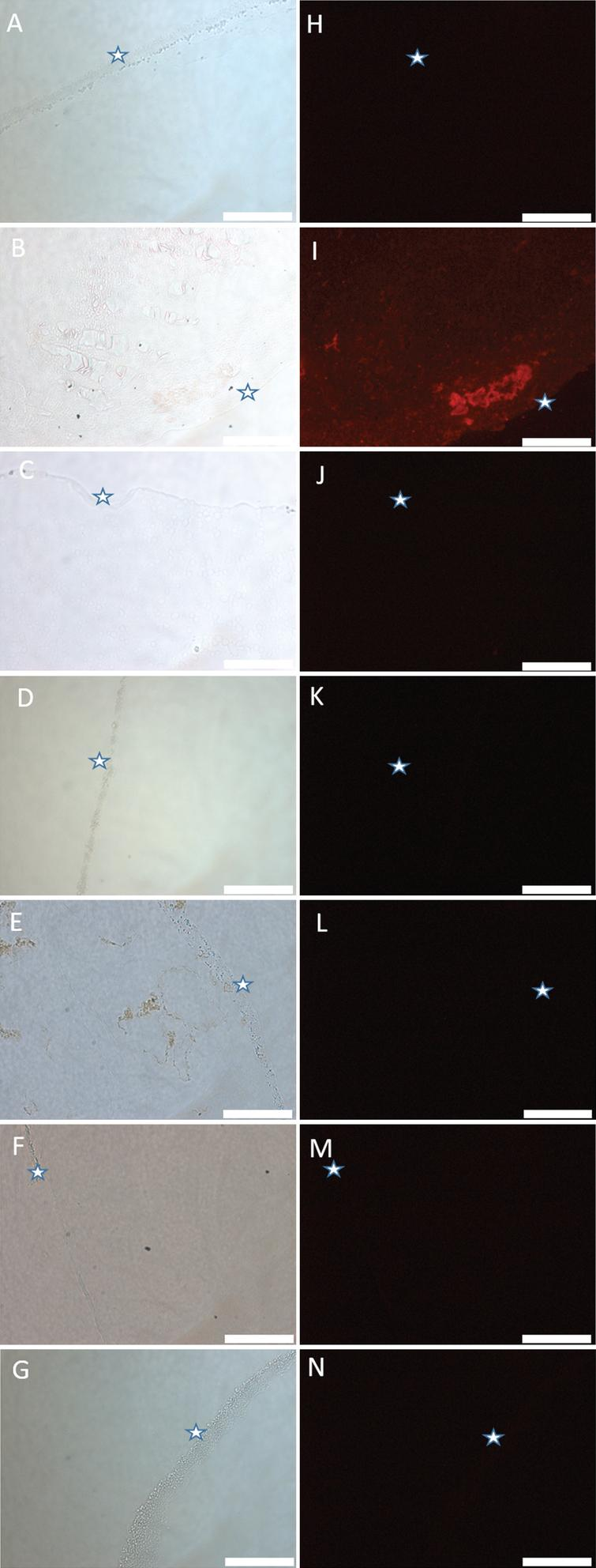 Light and fluorescence images of metal-impregnated agarose blocks stained with lumogallion. A, H) agarose gel only; B, I) agarose gel + Al(III); C, J) agarose gel + Ca(II); D, K) agarose gel + Cu(II); E, L) agarose gel + Fe(III); F, M) agarose gel + Mg(II); G, N) agarose gel + Zn(II). Stars indicate equivalent areas of each agarose block. Scale bar is 50 μm.