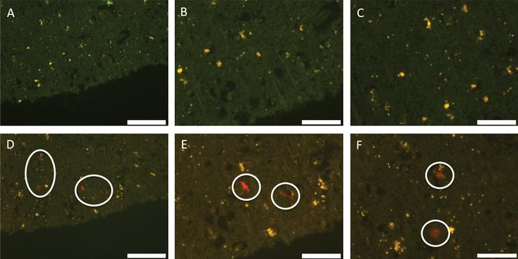 Autofluorescence (A–C) and fluorescence (D–F) images of occipital lobe stained with lumogallion. Significant deposits of aluminum showing strong positive fluorescence are circled. Scale bar is 100 μm (A and D) and 50 μm (B, C, E, F).