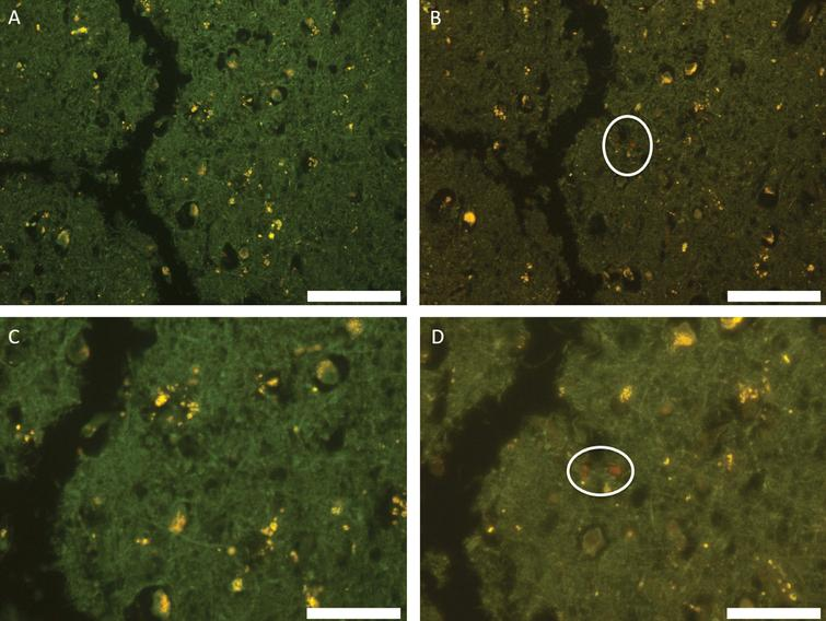Autofluorescence (A, C) and fluorescence (B, D) images of temporal lobe stained with lumogallion. Deposits of aluminum showing strong positive fluorescence are circled. Scale bar is 100 μm (A, B) and 50 μm (C, D).