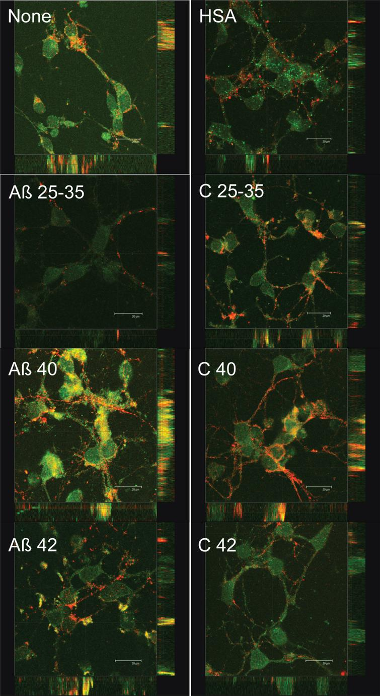 Effect of amyloid-beta peptides on PSD-95 and synaptotagmin localization. Neurons in primary culture (4 DIV) were incubated for 2 h in Hanks medium in the absence or the presence of 30 μM Aβ25-35, Aβ40, Aβ42, HSA, or HSA-Aβ complexes (C 25–35, C 40, C 42). After incubation, cells were fixed and immunocytochemistry against PSD-95 (in green) and against synaptotagmin (in red) was carried out. Images were taken using confocal microscopy. Orthogonal projections along the z-axis of the images are shown at the bottom and right. Scale bar: 20 μM