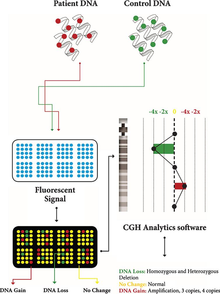 Description of CGH array. Patient DNA and control DNA are labeled with fluorescent dyes and applied to the microarray; theyhybridize on the microarray; the microarray scanner measures fluorescent signal intensity; computer software analyzes the data and generates aplot.