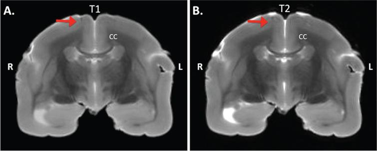 Postmortem MRI of a transcranial section of a marmoset brain. MRI is taken at +4 mm from Bregma on the anterior-posterior axis from an Aβ+LPS treated monkey. A) IR-RARE T1 weighed image, and B) TurboRARE T2 weighed image. The red arrow indicates the location of injection. CC, corpus callosum; R, right; L, left.