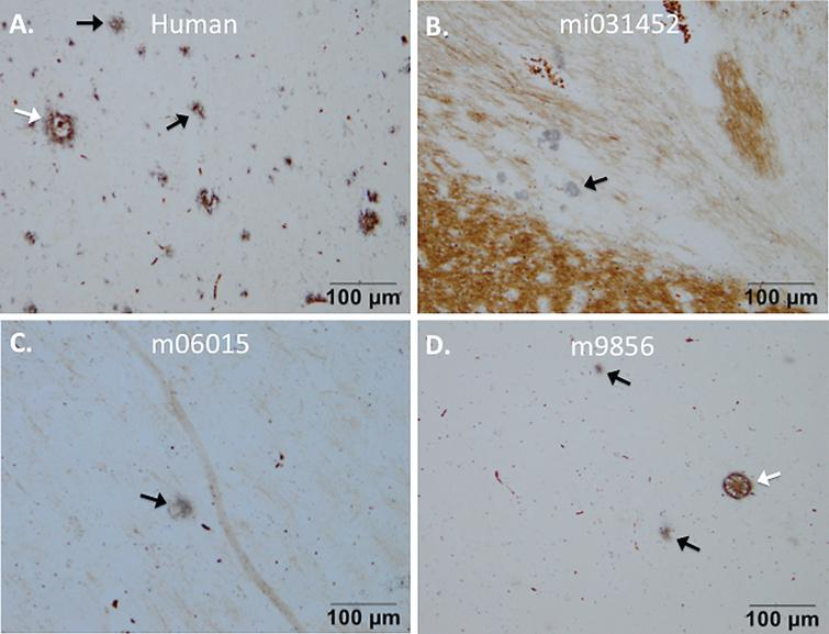 Senile plaques visualized with Campbell-Switzer staining. Senile plaque formation was present in brain material of an AD patient (A) and also natural (early) amyloidosis was present in the common marmoset (B) that died at an age of six due to wasting syndrome (mi031452). Experimental monkeys m06015 and m9856 that were injected with the Aβ combined with LPS also demonstrated amyloidopathy (C, D). The plaques in monkey m06015 were solely found in the right hemisphere. Diffuse plaques are indicated with a black arrow and dense-core plaques are indicated with a white arrow.