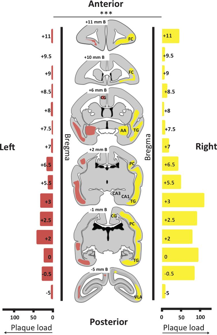 Plaque load and distribution throughout brain of monkey m9856. The distribution of the plaques is visualized on six transcranial sections and indicated in yellow in the right hemisphere and in red in the left hemisphere. The absolute plaque load of the right and left hemisphere on the sections analyzed are displayed on the left and the right side, respectively. The right demonstrated significantly more severe amyloidopathy than the left hemisphere (p < 0.001; Wilcoxon-signed-rank test). B, Bregma; FC, frontal cortex; CG, cingulate gyrus; AA, anterior amygdala; TG, temporal gyrus; PC, posterior cortex; CA3 & CA1, regions of hippocampus; VLA, ventrolateral anteriorextrastriate area.
