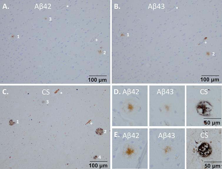 Composition of the plaques on brain sections from monkey m9856. Co-localization of Aβ42 (A) and Aβ43 (B) in plaques 1 and 2 are shown, which were also visible with the Campbell-Switzer staining (C). Plaque 3 was only Aβ42 positive and Campbell-Switzer positive. The vessels indicated by the asterisk (*) and plus (+) symbols, were used for navigation. Aβ42 mainly stained the center of the plaque, but also the outer circle, whereas Aβ43 only stains the center of the Campbell-Switzer positive plaque (D, E). CS, Campbell-Switzer staining; Aβ, amyloid-beta.
