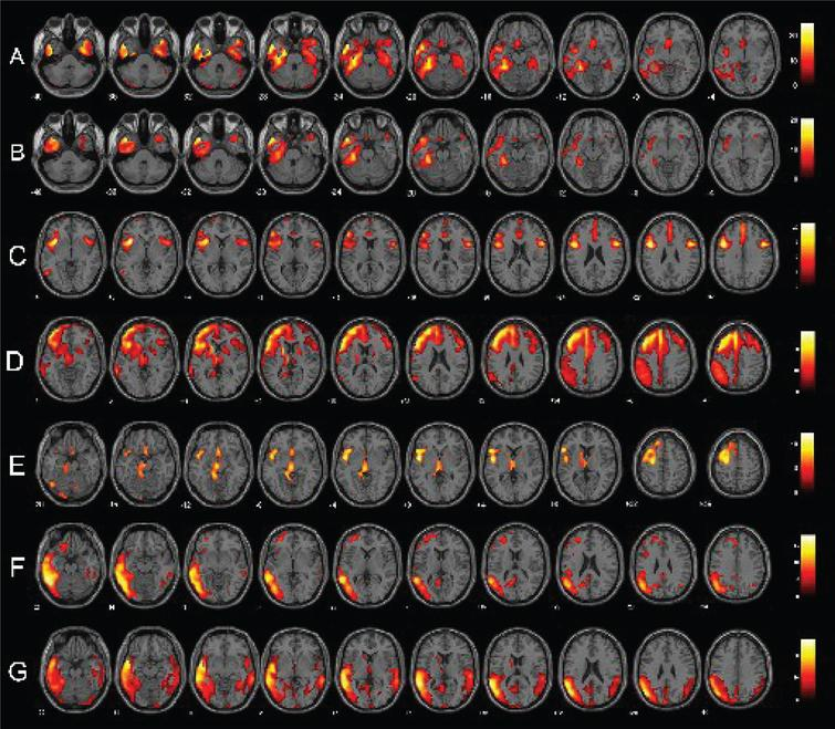 Single-subject FDG-PET SPM t-maps of PPA patients. Panels A and B show respectively a bilateral and a left-predominant pattern of anterior temporal hypometabolism in two sv-PPA patients. Panels C, D, and E represent respectively patterns of pure nfv-PPA, nfv-PPA classified as CBD and as PSP at the follow-up. Finally, panels F and G show lv-PPA with a left-predominant and a bilateral pattern of hypometabolism. FDG-PET SPM brain hypometabolism patterns are shown in axial view, p<0.001 uncorrected.