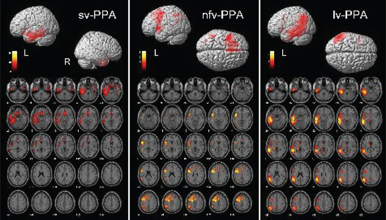 Brain regions showing significant FDG-PET hypometabolism in the primary progressive aphasia (PPA) variants. On the bottom side of each figure, the FDG-PET hypometabolic pattern resulting from the one-sample SPM group analysis is shown in axial view (x=[–40:+56]; p<0.001 uncorrected). On the upper side of each figure, left (L) and right (R) renders are shown. See text for details of the involved brain regions.