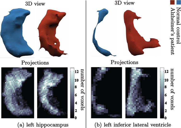 Change in shape of brain structures in AD manifested on projection images. (a) l. hippocampus 3D shape (upper panel) in NC (left) and AD (right). (b) l. inf. lat. ventricle 3D shape (upper panel) in healthy control (left) and AD patient (right). Lower panel shows the corresponding canonical view using our principal projections method.