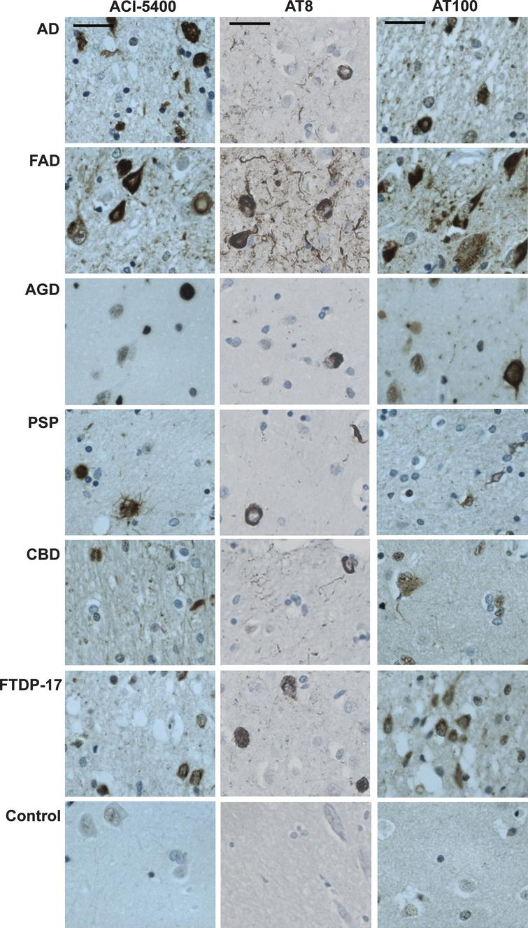 ACI-5400 specifically detects Tau pathology in clinically different tauopathies. IHC with ACI-5400 revealed aggregated Tau inclusions specific for the different tauopathies (left column), denoted by standard abbreviations in the captions on the left (n = 1). Parallel analysis with Mabs AT8 (central column) and AT100 (right column) were done as positive controls. The following antibody dilutions were used: ACI-5400 at 1/3'000, AT8 at 1/3'000, and AT100 at 1/100. Scale bars = 40 μm.