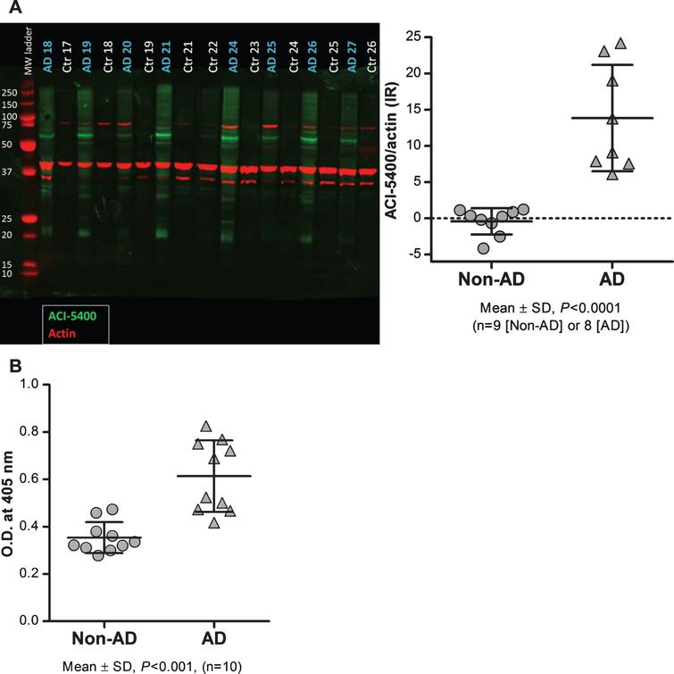 ACI-5400 detects significant higher levels of pathological Tau species in AD brain. Brain extracts from AD (n = 8) and non-AD (n = 9) subjects were analyzed by western blotting (A) and by a homotypic-ELISA (n = 10) using the ACI-5400 Mab (B). Blotting with the ACI-5400 Mab for pathological Tau species is represented in panel A by green signals for ACI-5400, red signals for actin, and with quantitation shown to the left. In panel A and panel B, individual values and means±SD are shown. In both assays the difference between non-AD and AD was statistically significant as indicated under each graph.
