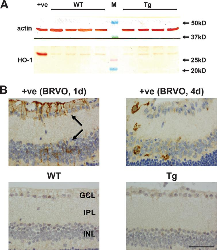 Analysis of heme oxygenase-1 (HO-1) expression in WT and Tg retinas. A) Expression of HO-1 protein in 12-month-old WT and Tg retinas as evaluated by western immunoblotting. An intense, single band of the expected molecular weight (32 kD) is apparent in an extract from a retinal culture treated with the pro-oxidant hydrogen peroxide (+ve). In WT and Tg retinas, a faint band of the correct molecular weight is evident. B) Representative images of HO-1 labeling in a retina subjected to branch retinal vein occlusion (BRVO, +ve control), and in 12-month-old WT and Tg retinas. HO-1 immunoreactivity is associated with astrocytes and Müller cells (arrows) in the retina analyzed 1d after induction of BRVO, and in activated microglia in the retina analyzed four days after induction of BRVO. Note: the area of retina shown is immediately adjacent to the vein occlusion site and not directly affected. No HO-1-positive cells are evident in WT or Tg retinas. Scale bar: 50 μm. GCL, ganglion cell layer; IPL, inner plexiform layer; INL, inner nuclear layer.