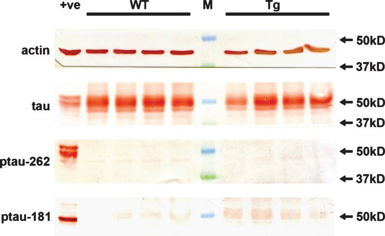 Analysis of hyperphosphorylated tau in WT and Tg retinas. Expression of tau, p-tau-T181, and p-tau-S262 proteins in 12-month-old WT and Tg retinas, as evaluated by western immunoblotting. Representative blots are shown from 12-month-old animals. Tau is abundant in extracts from WT and Tg retinas. In contrast, no unambiguous bands of the correct molecular weight are evident when membranes are incubated with antibodies directed against p-tau-T181 and p-tau-S262. Intense, single bands of the expected molecular weights are, however, apparent in an extract from a retinal culture treated with the potent phosphatase inhibitor calyculin A (+ve).