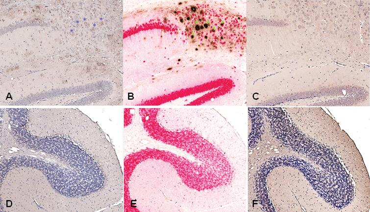 Antibodies from DNA Aβ42 immunized rabbits stain amyloid plaques in brain of 3xTg-AD mice (24 months old mouse). A) Aβ staining in hippocampus area with plasma from rabbit 828D (brown), B) control staining in parallel section with commercial anti-Aβ42 antibody (McSA1, brown) and NeuN (red), C) control staining of brain section from this 3xTg-AD mouse with control serum from a non-immunized rabbit, D–F) show no staining with rabbit antiserum and commercial antibody in plaque free cerebellum. In all sections, a 10x magnification is shown (Hamamatzu Nanozoomer). Asterisks indicate plaques stained with rabbit plasma (in A, blue in the color version online and black in the print version) and commercial control antibody (in B, green in the color version online and black in the print version).