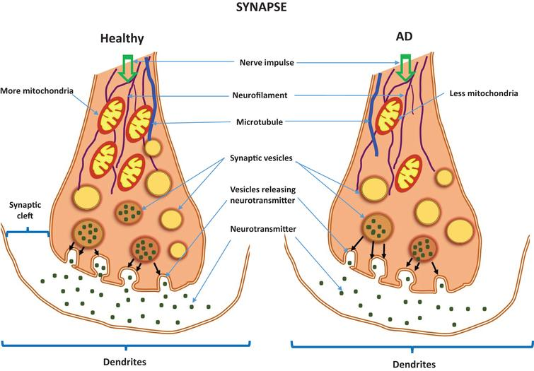 Neurotransmitters in a healthy synapse and an Alzheimer's disease synapse.