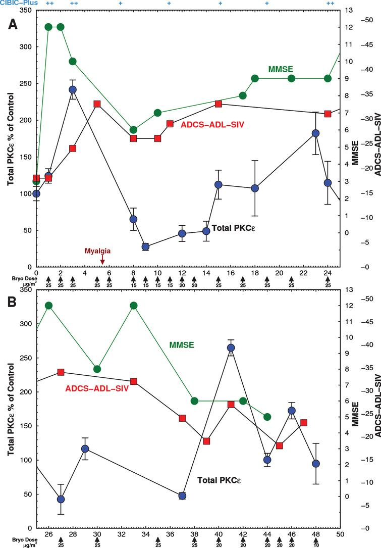 Time course of Expanded Access Subject PKCɛ and psychometric scores. Subject was infused with the indicated doses on 26 occasions over 46 weeks with bryostatin 1 as indicated by the arrows. The dose rate was gradually lowered from 25 to 10 μg/m2/week. Blood was drawn immediately before and after infusion and PBMCs were isolated on site and frozen. PBMCs were obtained from blood samples before each bryostatin dose and PKCɛ was measured by ELISA within 48 h. (Green) MMSE scores, measured 3 h after infusion, increased after the first dose and remained above baseline for 44 weeks. (Blue) Postinfusion PBMC PKCɛ. Bryostatin 1 infusion increased PKCɛ on the day of infusion followed by rapid downregulation. (Red) ADCS-ADL-SIV scores. PKC values are mean±SD of 4 to 8 replicate measurements. A) 0–25 weeks. B) 25–50 weeks.