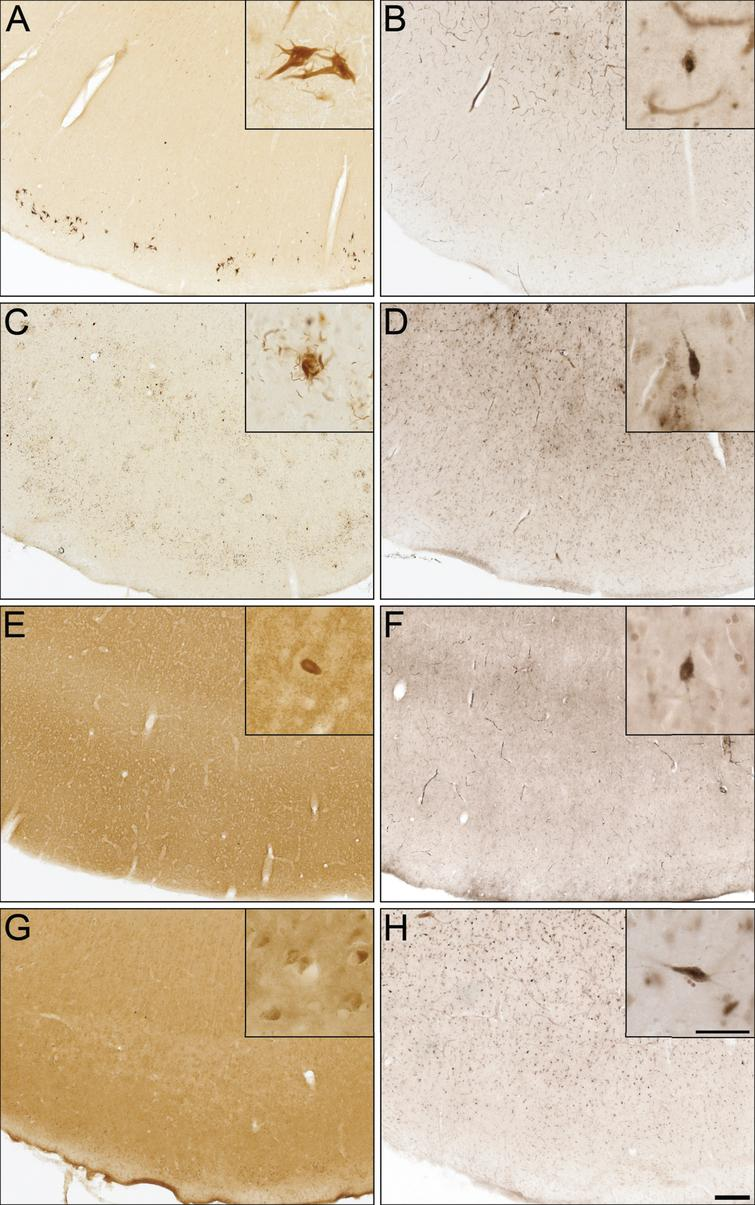 Photomicrographs of postmortem human entorhinal cortex from corticobasal degeneration (A,B), frontotemporal dementia with tau (C,D), dementia with Lewy bodies (E,F), and vascular dementia (G,H) stained for tau 3R (A), tau 4R (C), α-synuclein (E), Aβ (G), and butyrylcholinesterase (BChE) activity (B,D,F,H). Note, insets are higher magnification photomicrographs demonstrating examples of the pathology observed in each of the neurodegenerative diseases including neurofibrillary tangles (A), neuropil threads and degenerating neurites (C), Lewy bodies (E), and intraneuronal inclusions (G). Note, BChE staining was limited to a few scattered cortical neurons (insets B,D,F,H) and did not label pathological structures in these neurodegenerative diseases. Scale bars = 250 μm, insets 50 μm.