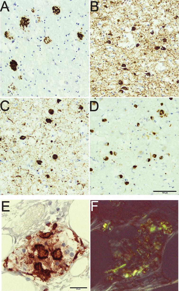 An 80-year-old male with a clinical diagnosis of Alzheimer's disease with mixed pathology seen in the amygdala. Note the rounded amyloid-β labeled aggregates in the brain parenchyma (A), the hyperphosphorylated-τ labeled neurites and intraneuronal tangles (B), the α-synuclein labeled neurites and intraneuronal Lewy bodies (C), and the phosphorylated transactive DNA binding protein 43 labeled cytoplasmic inclusions (D). Pancreas tissue from an 85-year-old female with diabetes mellitus and signs of depression. Note the protein aggregates in an islet of Langerhans labeled with antibody directed to islet amyloid polypeptide (E). The same islet of Langerhans seen in Congo stain (F); note the birefringence of the protein. Scale bar: 100 μm in A-D and 50 μm in E,F.