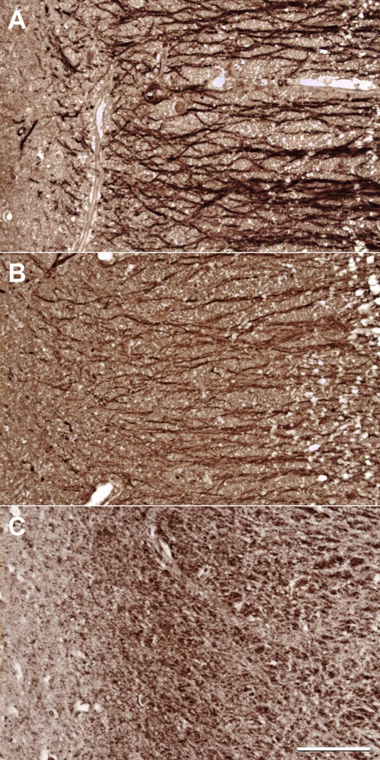 Representative images of staining for (A) MAP2, (B) Drebrin, and (C) PSD-95 in the stratum radiatum of CA1.