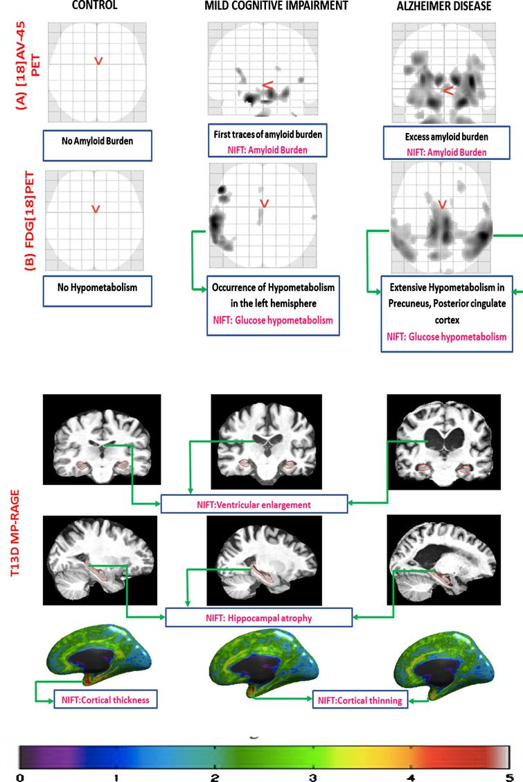 Manual annotation of brain image scans using NIFT. This figure represents different biomarkers captured using three different imaging techniques in control, mild cognitive impairment (MCI), and AD respectively. A) [18] AV-45 PET scan: this figure captures the increased amount of amyloid burden (p-value threshold 0.001; voxel extend 10; smoothing kernel [8-8-8]) during the disease progression across CN, MCI, and AD, respectively. B) FDG [18] PET: this figure captures no hypometabolism in control, increased hypometabolic pattern in case of MCI, and extensive hypometabolic topography in the temporo-parietal regions, precuneus, and posterior cingulate cortex (p-value threshold 0.001; voxel extend 10; smoothing kernel [8-8-8]). C) T13D MP-RAGE: the first row of the figure demonstrates the progressive ventricular enlargement among control, MCI, and AD respectively. The second row represents progressive hippocampal atrophy across control, MCI, and AD. The third row represents progressive cortical shrinkage in the temporal-parietal lobe, posterior cingulate and precuneus area.