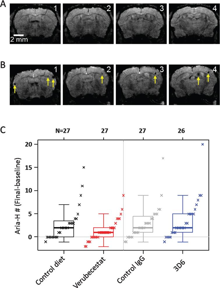 Longitudinal study of microhemorrhage identified by T2*-MRI. A) T2* images of 4 consecutive coronal slices from one mouse in the 3D6 treatment group at baseline. No microhemorrhages are observed. B) T2* images of the 4 coronal slices from the same mouse following 12 weeks of treatment with 3D6. Yellow arrows indicate the microhemorrhages visible in the T2* images. C) Baseline subtracted microhemorrhage events detected by T2*-MRI. All animals are plotted as a function of treatment. Each figure shows a boxplot for the indicated group with a line drawn at the median and the individual values overlaid. Sample sizes are given on the top axis.