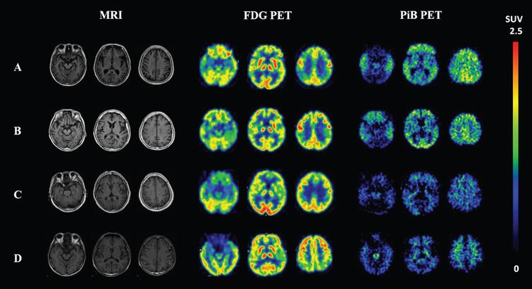 "T1-weighted MRI, FDG-PET and PiB-PET images of four representative participants. A 64-year-old female AD patient with positive Aβ deposition on PiB-PET and ""AD"" type of hypometabolism on FDG-PET (A); a 76-year-old female MCI subject with positive Aβ deposition on PiB-PET and ""AD"" type of hypometabolism on FDG-PET (B); a 78-year-old female AD patient with negative PiB and ""FTD"" type of hypometabolism (C); and a 71-year-old male AD patient with negative PiB and non-specific hypometabolism on FDG-PET (D). FDG, fluorodeoxyglucose; PiB, Pittsburgh compound B; PET, positron emission tomography; AD, Alzheimer's disease; MCI, mild cognitive impairment; FTD, frontotemporal dementia."