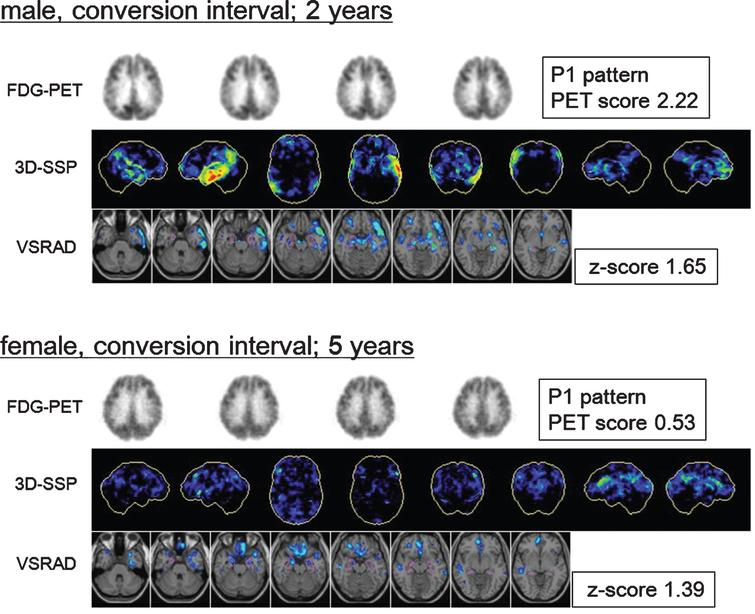 Fluorine-18-fluorodeoxyglucose positron emission tomography (18F-FDG-PET) transaxial images, 3-dimensional stereotactic surface projections (3D-SSP), and voxel-based specific regional analysis system for Alzheimer's disease (VSRAD) images of patients with mild cognitive impairment (MCI) converted to Alzheimer's disease (AD). Top: Baseline images of a male patient with MCI who converted during the second year. The 3D-SSP images show hypometabolism in the parietotemporal association cortex, posterior cingulate, and precuneus, mainly on the left side (visual assessment; P1 pattern, PET score=2.22). The VSRAD images show atrophy in the bilateral temporal lobe including the volume of interest (VOI) placed on the medial temporal structures (VSRAD z-score=1.65). Bottom: Baseline images of a patient with MCI who converted in the fifth year. The 3D-SSP images show slight hypometabolism in the parietotemporal association cortex, posterior cingulate, and precuneus (visual assessment; P1 pattern, PET score=0.53). The VSRAD images show mild atrophy in the target VOI (VSRAD z-score=1.39). The earlier converter exhibited clearer AD-like changes at baseline than slower converter did.