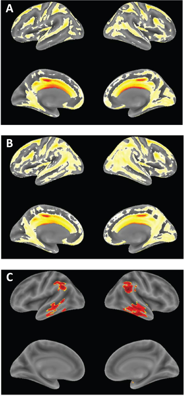 Voxel-based morphometric comparison showing regions of greater atrophy in patients receiving LMTM as monotherapy [N=157] (A) or as add-on to approved treatments for AD [N=610], (B) in TRx-237-005 compared with elderly controls [N=244] from the ongoing Aberdeen birth cohort studies [23, 26], controlled for age, sex and total intracranial volume of each individual. (C) Voxel-based morphometric comparison of monotherapy and add-on patients in TRx-237-005. Data are displayed at a significance threshold corrected for family-wise error at the whole brain level at p<0.05.