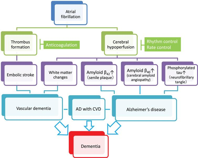 Plausible mechanisms by which atrial fibrillation (AF) induces vascular dementia and Alzheimer's disease (AD). AF causes cerebral infarction due to the embolic mechanism through thrombus formation within the heart chamber and can be a risk of vascular dementia (left cascade). Meanwhile, persistent AF may accelerate the three major pathological hallmarks of AD, namely senile plaques, amyloid angiopathy, and neurofibrillary tangles, through AF-associated cerebral hypoperfusion (right cascade). In addition, cerebral hypoperfusion can cause hypoperfusive vascular dementia. Although further research should be conducted to reach definitive conclusions, anticoagulation therapy may prevent vascular dementia, while rhythm/rate control may prevent AD. Since AD frequently coexists with cerebrovascular diseases (AD with CVD) in the elderly, and both dementing disorders may be induced by AF, optimal management of AF should be considered for prevention of the two major subtypes of dementia. Possible confounding pathologies that contribute to dementia in AF patients are not included in the figure for simplification (see text for details).