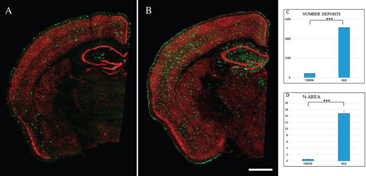 Spatial distribution Aβ-deposits in entorhinal cortex in APPswe/PS1dE9 mice at different ages. Expression of NeuN (red) and antiAβ (green) antibodies. 6-month-old mice (A), 24-month- old mice (B). Coronal section, bars 50μm. C) t-test number of Aβ-deposits in entorhinal cortex in young (324.733±28.747) versus old (3854.867±252.844) ***p < 0.001. D) t-test % area in young (0.539±0.069) versus old (14.801±0.866) ***p < 0.001.