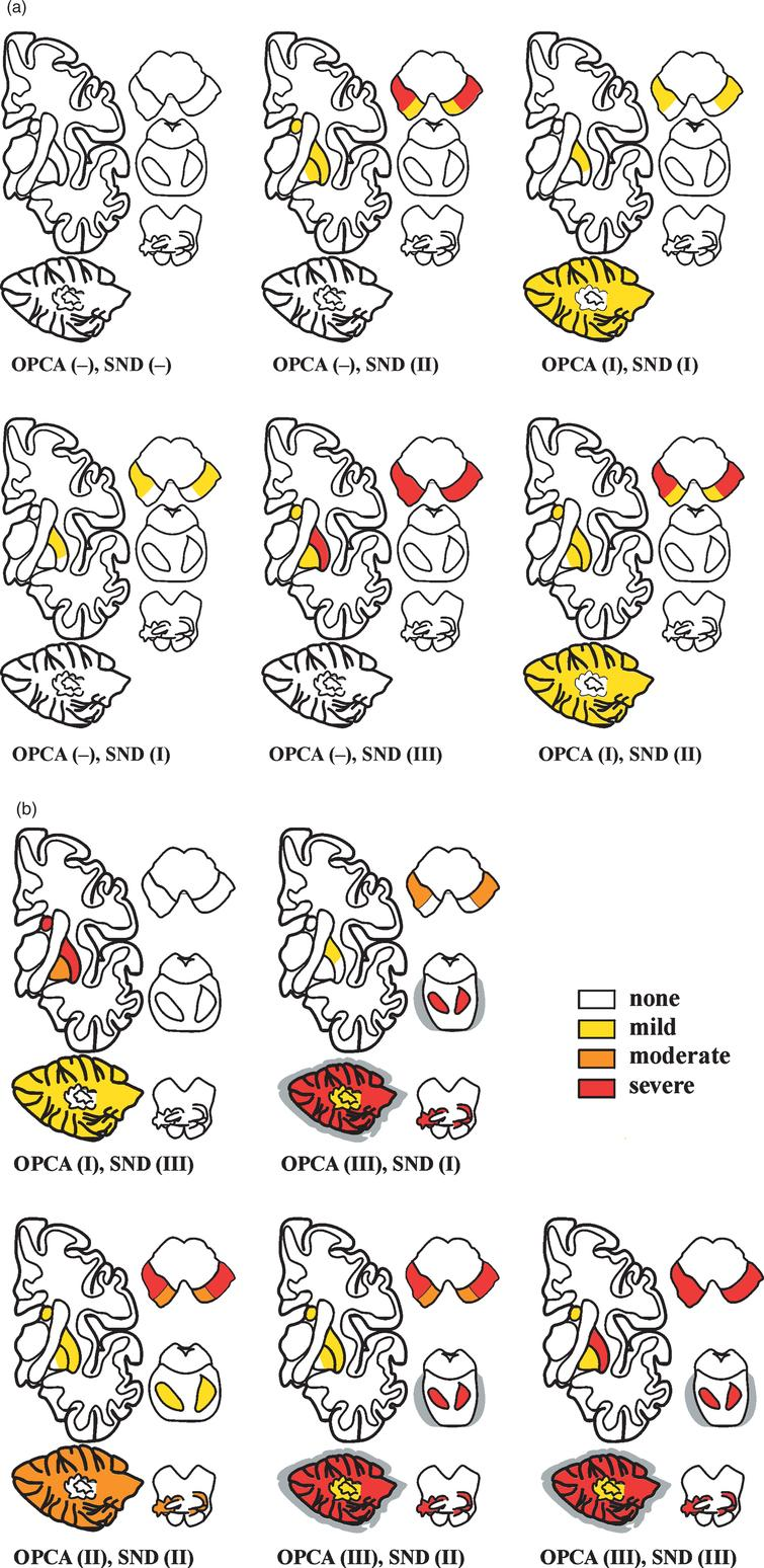 Schematic distribution of various combination types of SND and OPCA in 42 autopsy-proven cases of MSA (22 MS-P, 20 MS-C), showing different severity of morphological lesions (from [213]).
