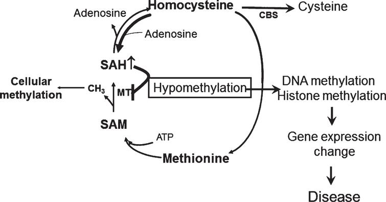 The methylation hypothesis. HHCY promotes SAH increase that blocks DNA and histone methylation by inhibiting DNA methyltranferase (MT). This process results in altered expression of disease associated genes.