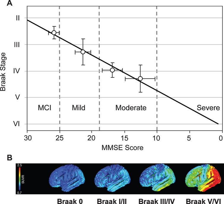 Correlation of Braak staging with cognitive decline and pathology. Cognitive decline is measured by MMSE determined 12–24 months antemortem and tau pathology measured in vivo using 18F-AV-1451 (tau) PET. Source: (A) From Wischik et al., Biochem Pharmacol 88, 529-539, 2014; (B) From Schöll et al., Neuron 89, 971-982, 2016, with permission of Elsevier.