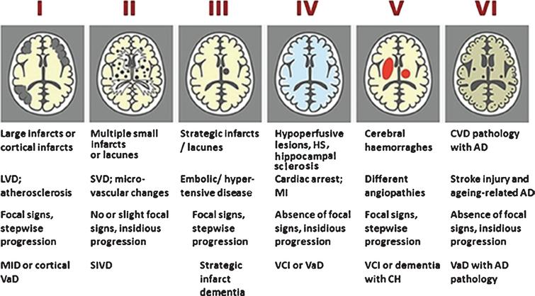 Newcastle categorization in six subtypes of different cerebrovascular pathologies associated with VCI. Post-stroke survivors are included in subtypes I–III. Cases with extensive WM disease in the absence of significant other features are included under SVD. Subtype I may result from large vessel occlusion (athero-thromboembolism), artery-to-artery embolism or cardioembolism. Subtype II usually involves arteriosclerosis, lipohyalinosis and hypertensive, arteriosclerotic, amyloid or collagen angiopathy. Subtypes I, II and V may result from aneurysms, arterial dissections, arteriovenous malformations and various forms of arteritis (vasculitis). AD, Alzheimer's disease; CH, cerebral haemorrhage; CVD, cerebrovascular disease; MI, myocardial infarction; MID, multi-infarct dementia; LVD, large vessel disease; SIVD, subcortical ischemic vascular dementia; SVD, small vessel disease; VCI, vascular cognitive impairment; VaD, vascular dementia. From: Kalaria RN, 2016 [13].