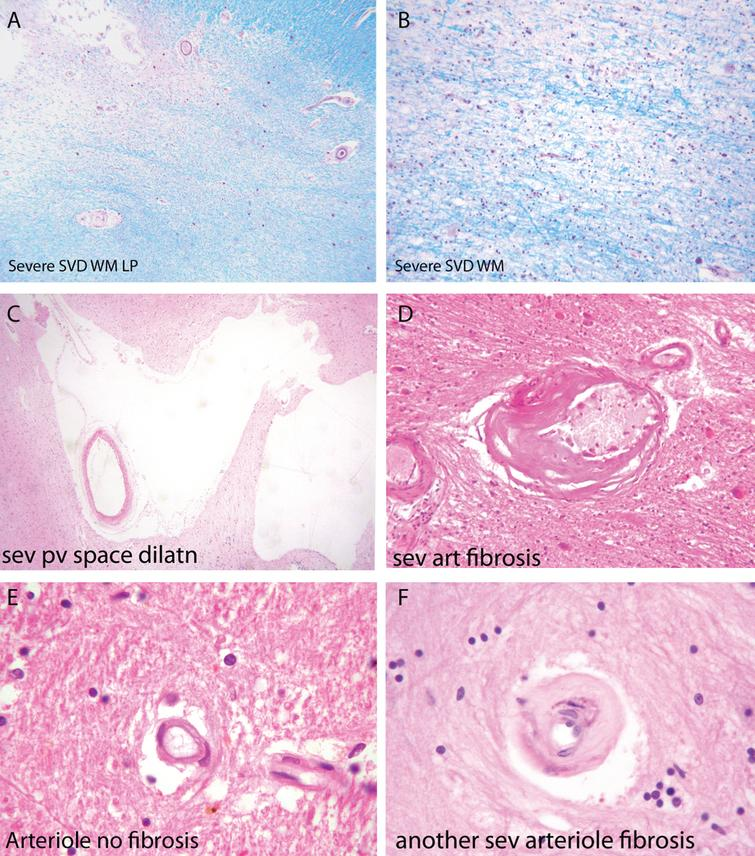 Components of the pathology due to SSVD. A, B) Low power (A) and higher power (B) views of a histological section from a case of SSVD. The section has been stained for myelin (blue) (Luxol fast blue/cresyl violet stain). There is diffuse pallor of staining and, at the top left corner of the section in (A), the tissue is necrotic. B) Damaged white matter at higher power. The nuclei (purple) are chiefly those of infiltrating macrophages. C) Greatly dilated perivascular space (hematoxylin and eosin stain). D) Small artery with a grossly thickened wall in which collagen has replaced smooth muscle (hematoxylin and eosin stain). E) Normal white matter arterioles in which the deeper pink cells are smooth muscle cells. F) Severely fibrotic and stenosed arteriole from a case of SSVD (E and F, hematoxylin and eosin).