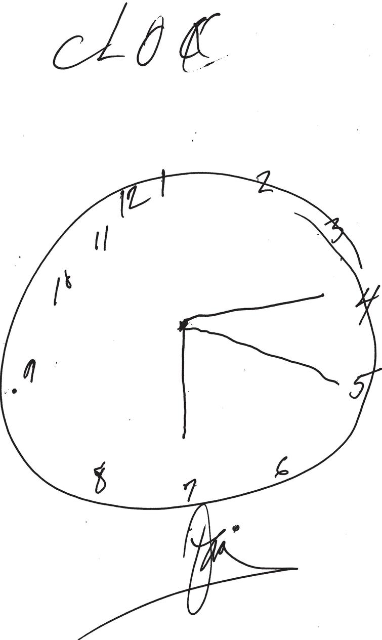 """Executive Clock-Drawing Task (CLOX): The patient is instructed to draw a clock on a white sheet of paper. The instructions are as follows: """"Draw a clock that says 1:45. Set the hands and numbers on the face of the clock so that even a child could read them."""" The instructions can be repeated until they are clearly understood, but once the subject begins to draw no further assistance is allowed. This patient scored 7/15 points. The subject's performance is scored as follows: Does figure resemble a clock? 1 point; Circular face present? 1 point; Dimensions>1 inch? 1 point; All numbers inside the perimeter? 1 point; No sectoring or tic marks? 1 point; Numbers 12, 6, 3, & 9 placed first? 1 point; Spacing Intact? (Symmetry on either side of 12 and 6 o'clock?) 1 point; Only Arabic numerals? 1 point; Only numbers 1 - 12 among the numerals present? 1 point; Sequence 1-12 intact? No omissions or intrusions. 1 point; Only two hands are present? 1 point; All hands represented as arrows? 1 point; Hour hand between 1 and 2 o'clock? 1 point; Minute hand obviously longer than hour? 1 point; 1 point if none of the following are present: 1) Hand pointing to 4 or 5 o'clock? 2) """"1:45"""" present? 3) Any other notation (e.g., """" 9:00"""")? 4) Any arrows point inward? 5) Intrusions from """"hand"""" or """"face"""" present? 6) Any letters, words or pictures? From: Royall etal., 1998 [116]."""