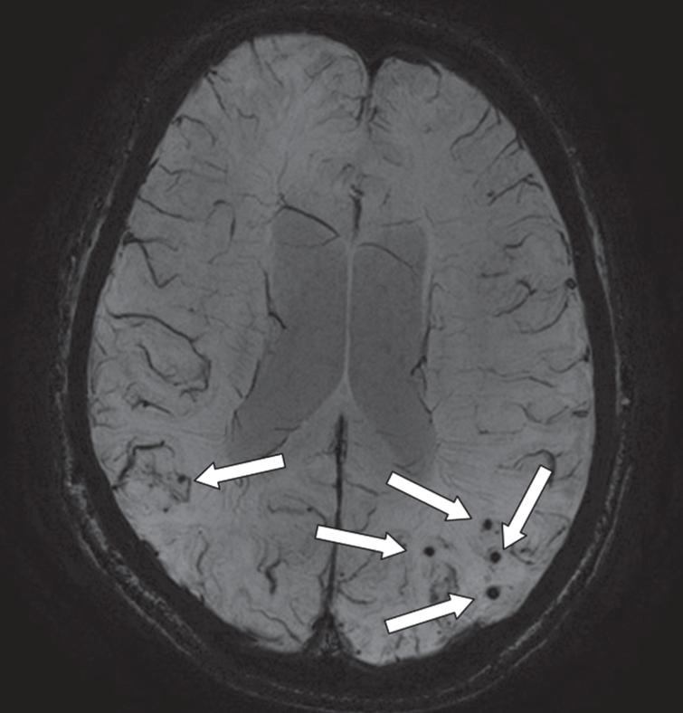 An axial MRI image of a susceptibility weighted image (SWI) that provides information on the presence of microbleeds (arrows; occipital part of the cortex). This is an image of a 68-year-old male with a diagnosis of Alzheimer's disease. On presentation, he had an MMSE of 23. On MRI, there was evidence of moderate atrophy of the medial temporal lobe, mild global cortical atrophy, beginning confluent white matter hyperintensities and multiple microbleeds (mostly with a lobar location).