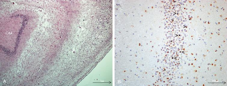 A) Hippocampal sclerosis, severe neuronal loss in CA1 sector, HE- stained. B) TDP-43 immunostaining of dentate fascia granule cells showing NCIs, (open arrow head), dark brown. Lipofuscin (star) is seen as yellowish granular deposits.