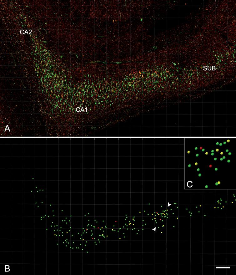 Analysis of the distribution and expression of PHF-Tau-ir neurons using Imaris software. A) Confocal microscopy image showing a double-immunostained section for PHFpS396 (green) and PHFAT8 (red) antibodies, in CA1 region from patient Az4. The entire CA1 region can be visualized. B) Spots are assigned to each neuron, easily visualized when confocal channels are turned off. C) The rectangle is a higher magnification of the region marked by the arrowheads in B. The different spot colors correspond to PHFpS396-ir neurons (green), PHFAT8-ir neurons (red), and coexpressing neurons (yellow). Scale bar: 200μm (in B); 50μm in (C).
