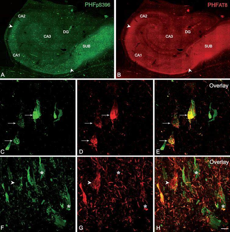 Confocal stack projection images to illustrate labeling patterns of neurons in double-immunostained sections for PHFpS396 and PHFAT8. Low-power confocal images of the hippocampal formation showing immunostaining for PHFpS396 (A, in green) and PHFAT8 (B, in red). Arrowheads indicate CA1 boundaries. C–H) Trios of confocal stack projection images taken from PHFpS396/PHFAT8 double-immunostained sections. Arrows designate neurons expressing both anti-PHFpS396 and anti-PHFAT8 (C–E). Arrowheads indicate a neuron expressing anti-PHFAT8, and asterisks indicate two neurons expressing only PHFpS396. DG, dentate gyrus; CA1–CA3, cornu ammonis fields; SUB, subiculum. Scale bar (in H): 922μm (in A, B) and 50μm (in C–H).