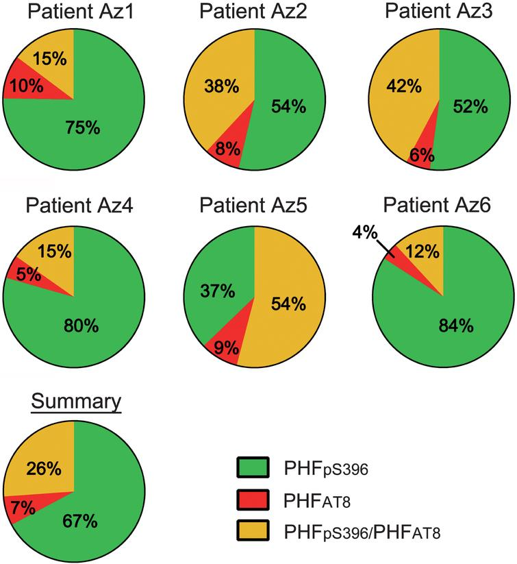 "Pie charts showing the percentages of labeled neurons in double immunostaining studies for PHFpS396 and PHFAT8. Note the high variability of patterns. Average percentages of expression patterns are shown in the ""Summary"" chart, in which it is clear that there is a higher proportion of PHFpS396-ir neurons."