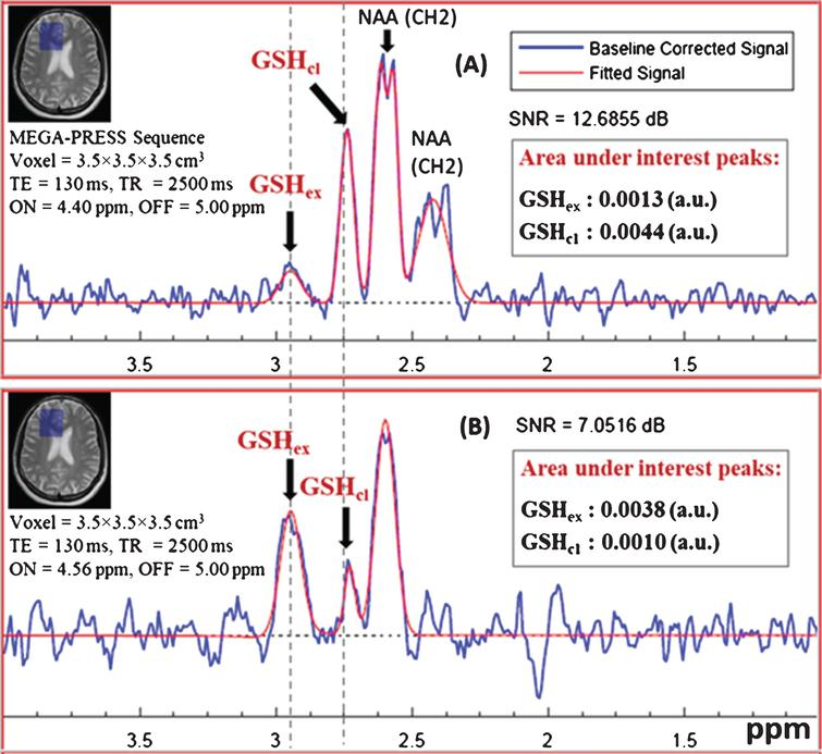 Detection of the two (extended and closed) in vivo GSH conformer peaks (GSHex and GSHcl) in healthy control subject using MEGA-PRESS experiment. Data was collected using 3T Philips scanner at NBRC. Data acquisition was performed with following parameters: TE=130ms, TR=2500ms, (A) MEGA-ON/OFF=4.40ppm/5.00ppm and, (B) MEGA-ON/OFF=4.56ppm/5.00ppm) (voxel size=3.5×3.5×3.5 cm3 on right frontal cortex).