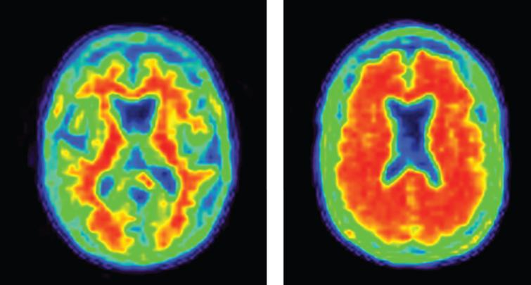 Negative (normal) and positive (abnormal; consistent with AD) amyloid PET images.