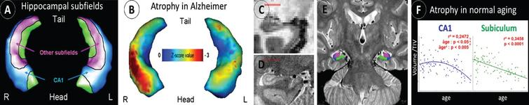 Differential alteration of hippocampal subfields in AD versus normal aging. The hippocampal subfields can be distinguished on 3D hippocampal surface views (A), and this technique showed predominant atrophy of the CA1 subfield in AD (B). Compared to standard resolution T1 MRI (C), a high-resolution proton density MRI sequence allows to visualize the hippocampus fine anatomy (D) and thus to delineate the different hippocampal subfields (E). This approach is promising for early AD diagnosis as it allows to distinguish the effects of AD from that of other conditions such as normal aging (F).