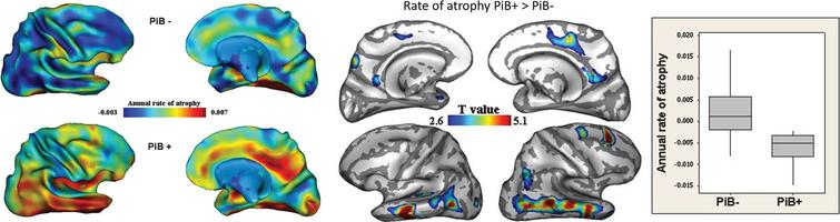 Comparison of the rate of atrophy over two years between cognitively intact older adults with (PIB+) and without (PIB-) Aβ deposition in their brain (as measured with PIB-PET) (Left). This study shows a greater rate of atrophy in PIB+ individuals, especially in the temporal neocortex and posterior and middle cingulate cortex (Right). From [35].