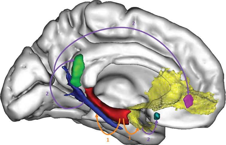Distant relationships between atrophy and hypometabolism in AD. Using original methods especially developed for this purpose, we showed that hippocampal atrophy (red) was at least partly responsible for the disruption of white matter fibers (the perforant path in blue and the uncinate fasciculus in yellow) (1) itself responsible for hypometabolism in the posterior cingulate (green) and medial orbitofrontal cortex (purple and light blue) (2). From [42].