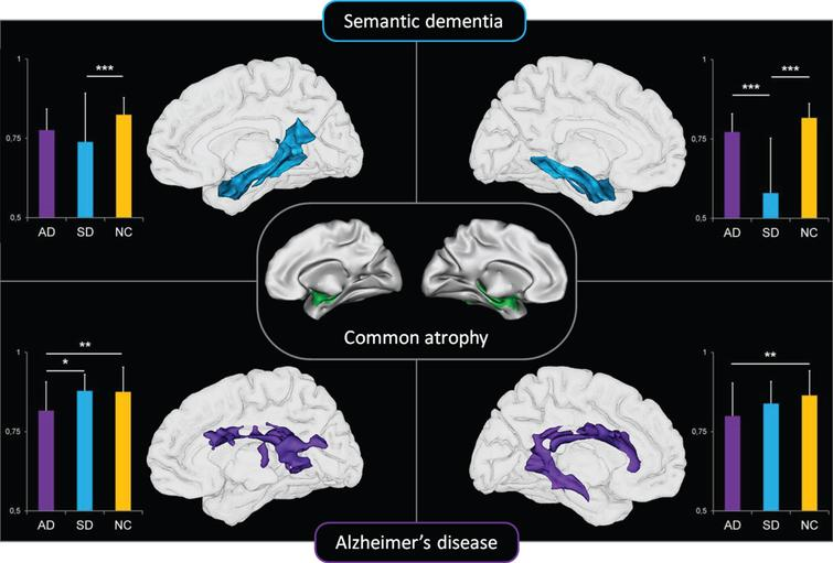 Relationships between medial temporal lobe atrophy common to AD and SD (center panel) and whole-brain white matter density maps in patients with AD (top panel) and semantic dementia (bottom panel). From [45].