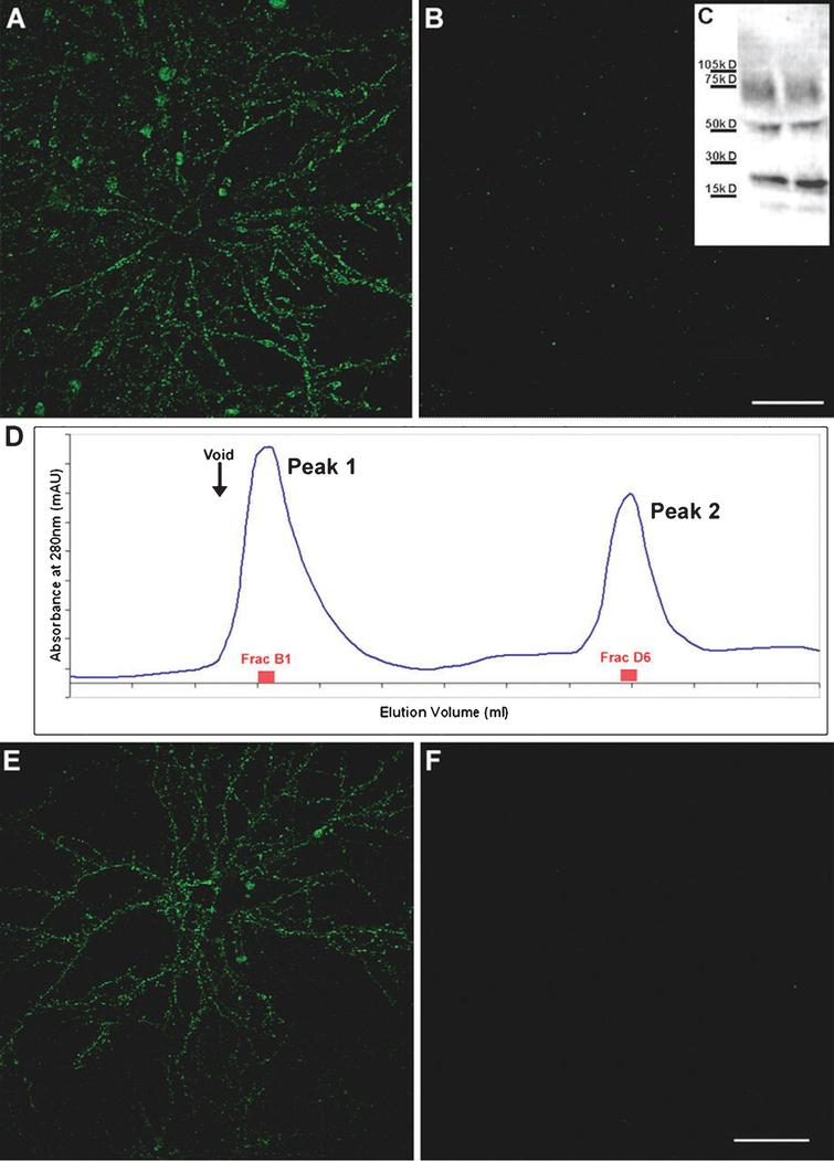 "Only high-molecular weight AβOs are capable of binding cultured hippocampal neurons. Synthetic AβOs were divided into high and low molecular weight populations using 50 kDa molecular weight cutoff ultrafiltration (A-B) or size exclusion chromatography (D-F) and incubated with cultured hippocampal neurons. Only high-molecular weight AβOs bind neurons (A, E); no binding of low-molecular weight AβOs was evident (B, F). Scale bar = 40μm. Reprinted from ""Synaptic targeting by Alzheimer's-related amyloid beta oligomers"" by Lacor PN, Buniel MC, Chang L, Fernandez SJ, Gong Y, Viola KL, Lambert MP, Velasco PT, Bigio EH, Finch CE, Krafft GA, and Klein WL. This was published in J Neurosci, 2004, 24(45): 10191-10200, copyright 2004; permission conveyed through Copyright Clearance Center, Inc. [16]."