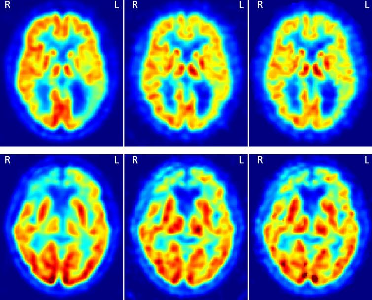 Two examples of the FDG, pPiB(1– 8min), and R1(MRTM) images, respectively from the left to the right. The images on the top are from a patient with AD, and on the bottom from a patient with FTD. In the top there is an asymmetric uptake in the parietal cortex and on the bottom an asymmetric uptake in the frontal cortex. These patterns can be seen in the three types of images.