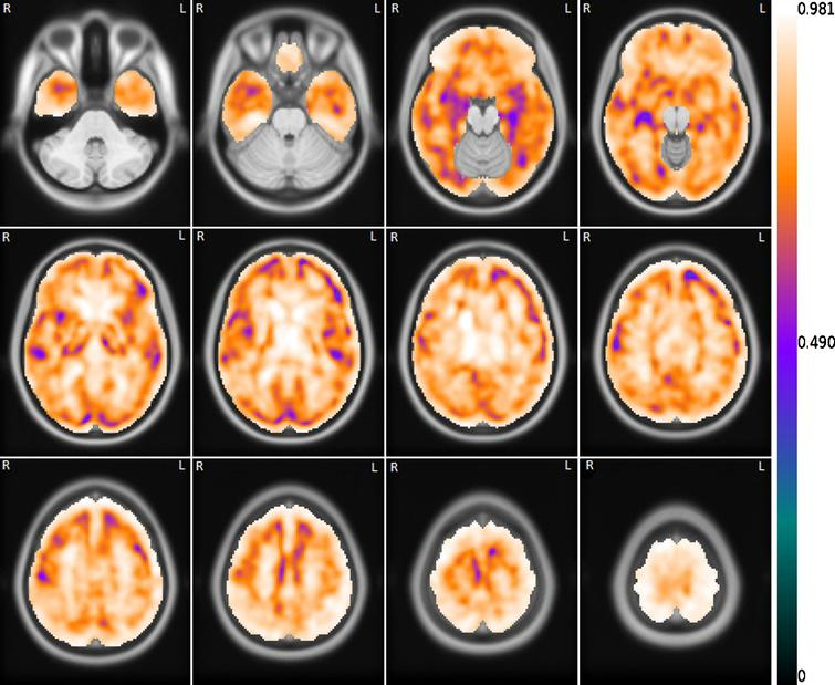 Mean voxelwise correlation between the set of FDG images and the correspondent set of R1(MRTM) images. The correlation image is overlapping the template MRI image.